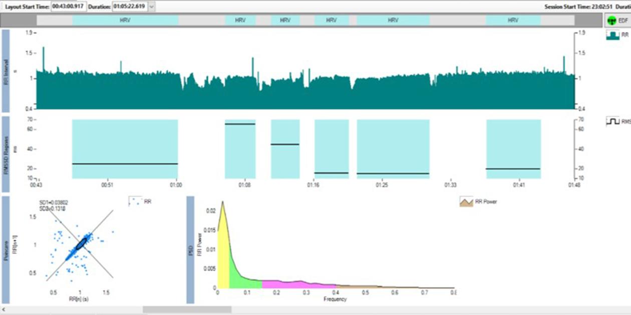 HRV data from ECG of a single subject visualized in VivoSense.