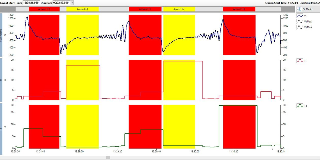 RP data from a patient with Rett syndrome visualized in VivoSense